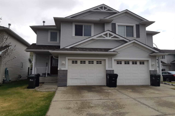 41 115 Chestermere Drive, Sherwood Park